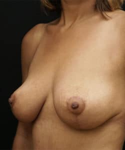 breast lift after 2.2 250x300 1