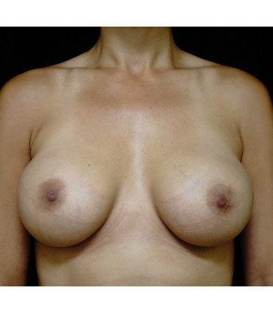 Breast Augmentation Case ID 13697