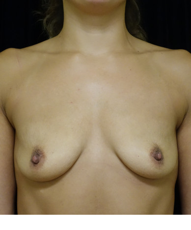 Breast Augmentation Case ID 13885