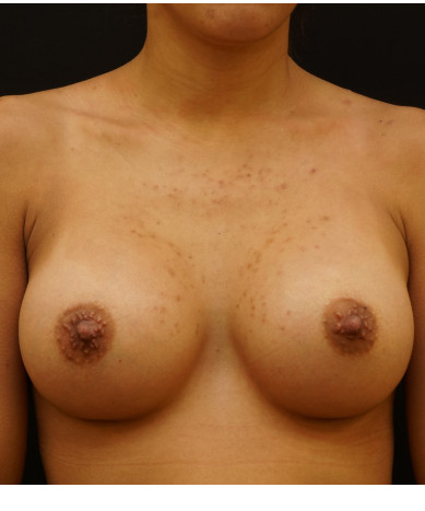 Breast Augmentation Case ID: 14035
