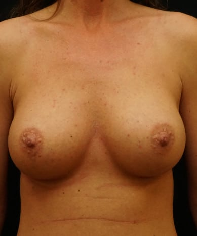 Breast Augmentation Case ID 14184