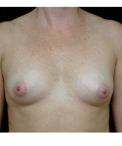 Breast Augmentation Case ID 14196