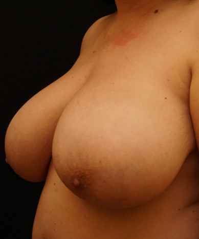Breast Reduction Case ID 14299