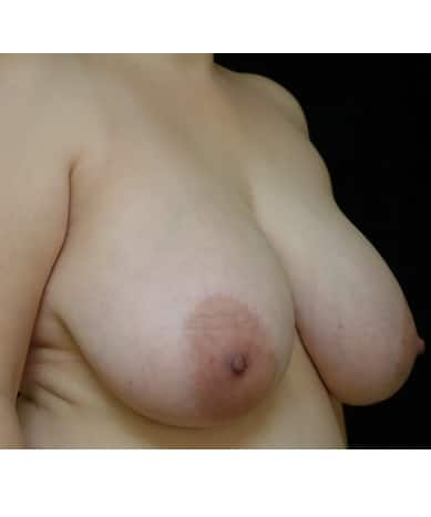 Breast Reduction Case ID 14357
