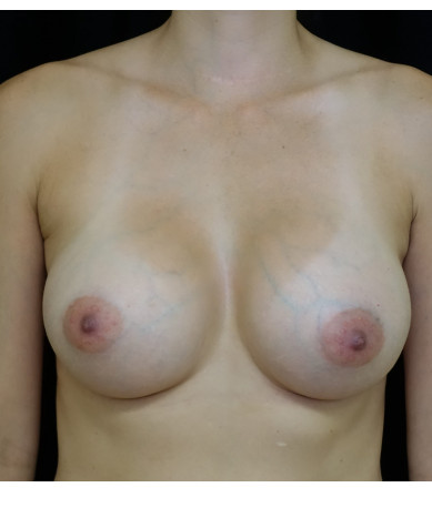 Breast Augmentation Case ID 14372