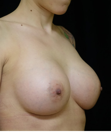 Breast Augmentation Case ID 14375