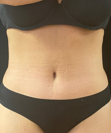 Abdominoplasty with Liposuction